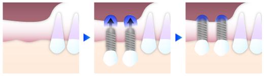 インプラント治療で歯科用CTを使用するメリット