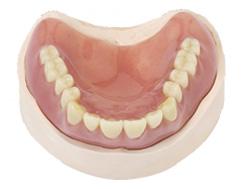 レジン床義歯の特徴